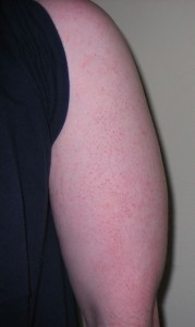 what causes keratosis pilaris